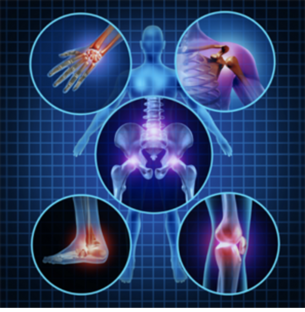 Arthritis and Coxarthrosis: Understanding and Herbal Remedy