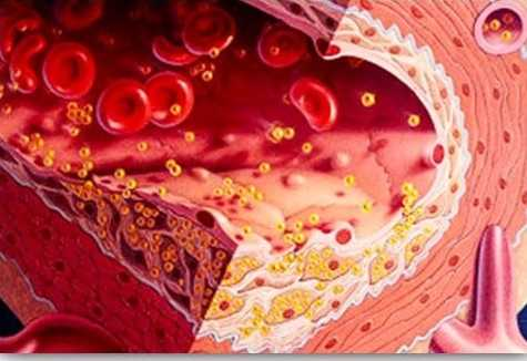 Cholesterol: Its benefits and harms in health